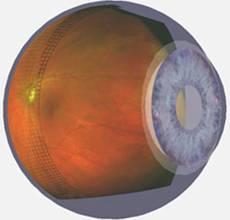 Advanced Retinal Imaging